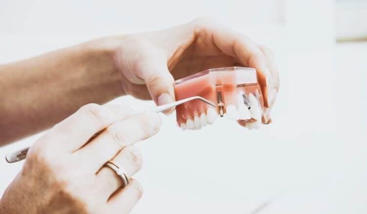 Jak wygląda zabieg wszczepienie implantu zęba?